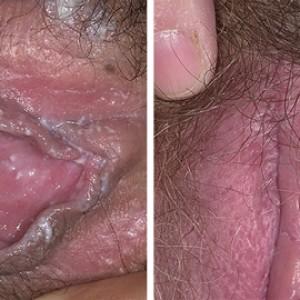 Молочница вагины