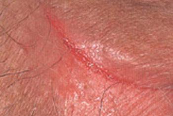 Трещины при молочнице Инфекционные заболевания