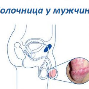 кандидоз половых органов у мужчин