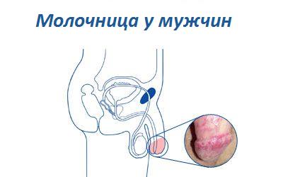 Как проявляется молочница и ее симптомы