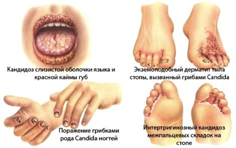 Классификация женских вульв фото фото 169-549