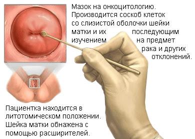 Мазок у гинеколога фото 27-919