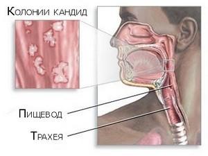 молочница в ротовой полости