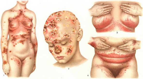 варианты поражения кожи кандидозом
